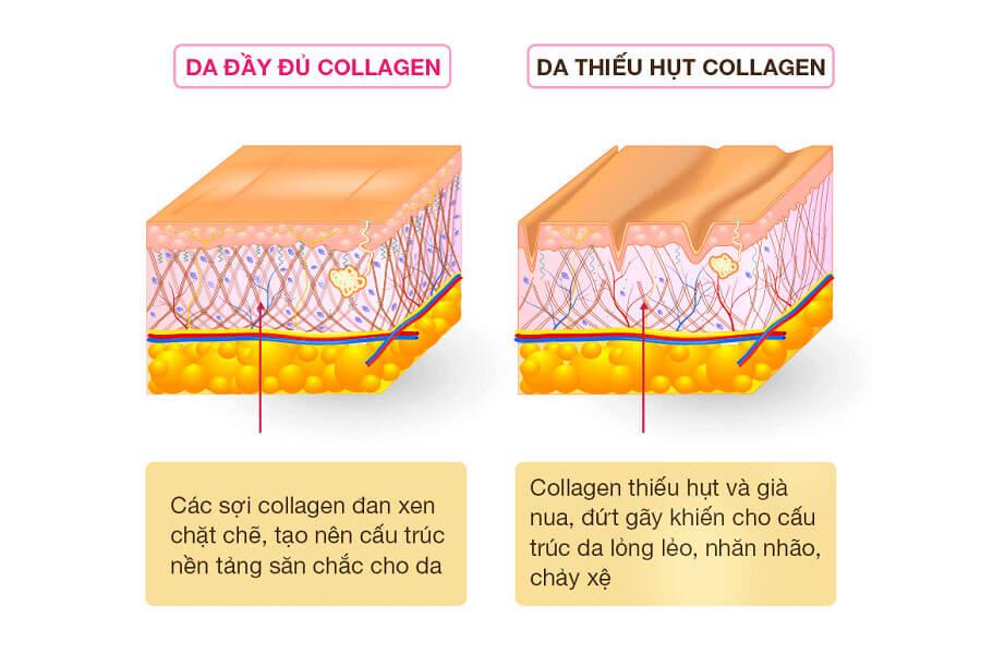 Collagen quyết định đến sự săn chắc, đàn hồi của làn da