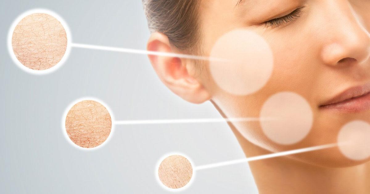 Hiểu đúng về da khô mất nước để có cách khắc phục hiệu quả
