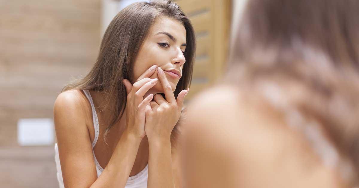 Mụn ẩn dưới da - Nguyên nhân và phương pháp điều trị