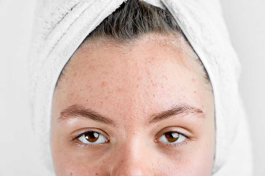 Mụn ẩn sẽ khiến làn da trở nên thô ráp, sần sùi và kém sắc