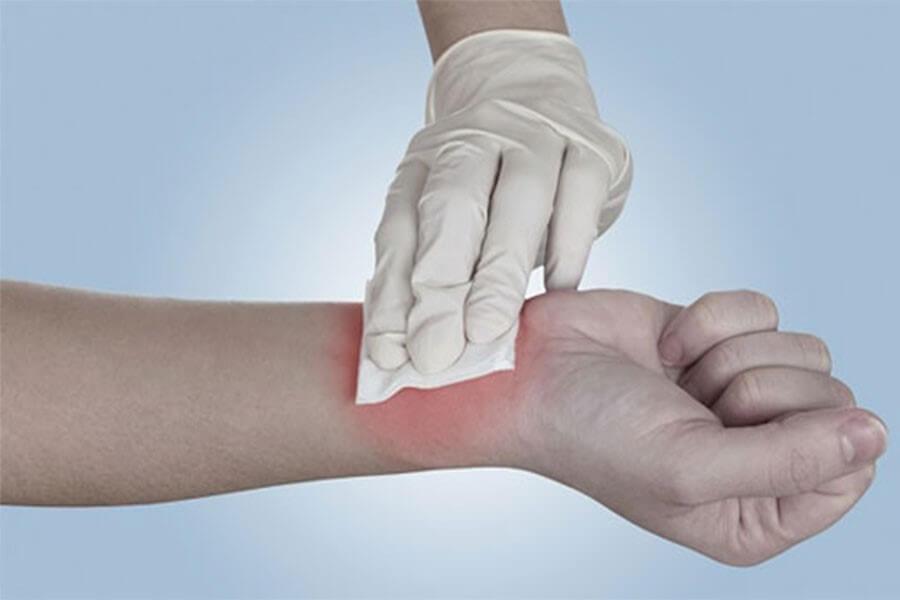 Như thế nào là vết thương bị nhiễm trùng