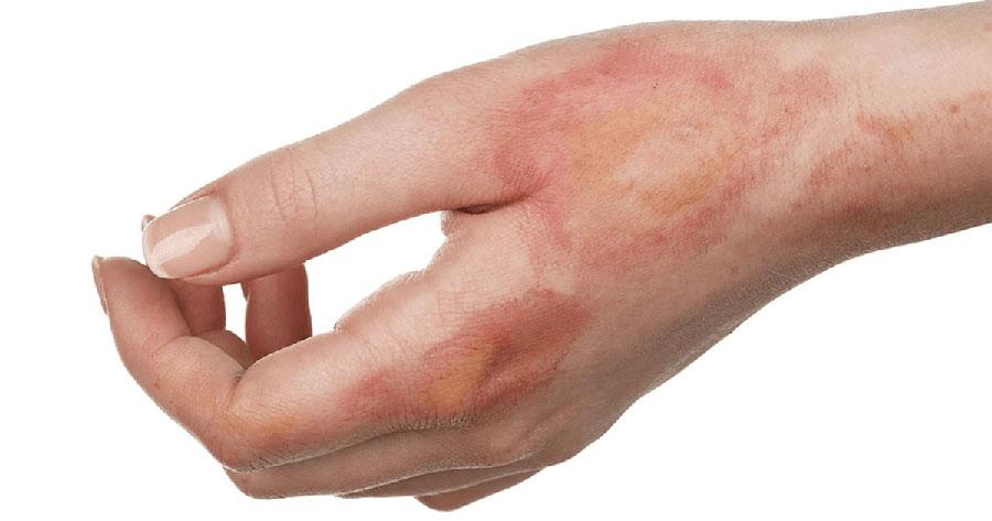 Tình trạng sưng đỏ cũng xuất hiện khi mới bị thương