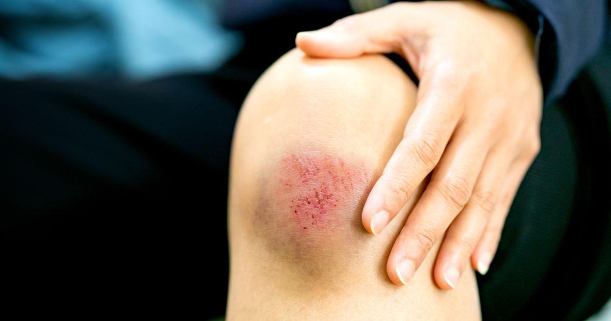 Vết thương bị nhiễm trùng - Những điều bạn cần biết ?