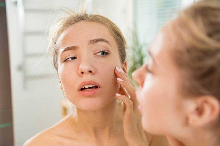 Làn da mỏng, yếu dễ bị kích ứng khi sử dụng kem chống nắng