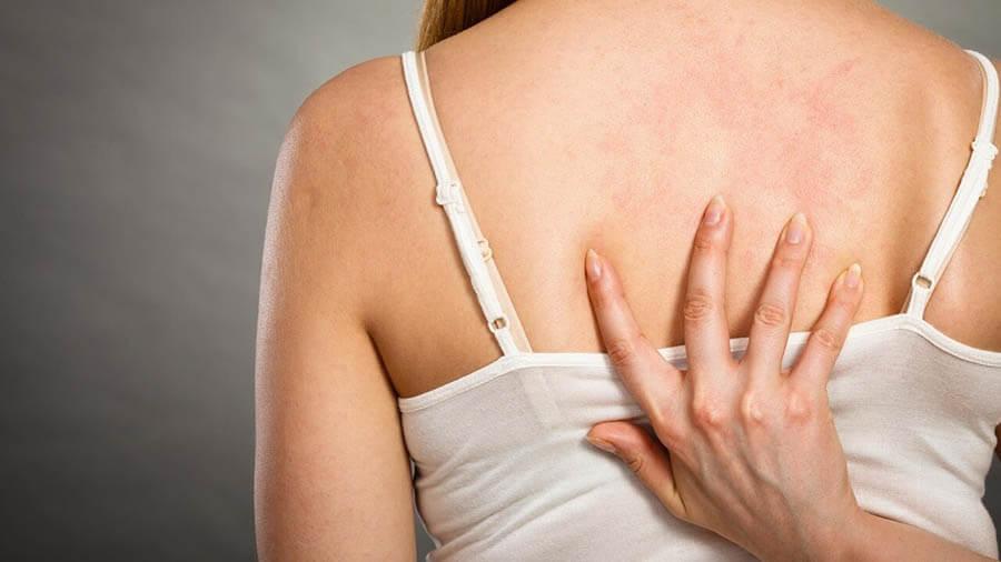 Mụn, viêm nang lông cơ thể thường gây ngứa khó chịu
