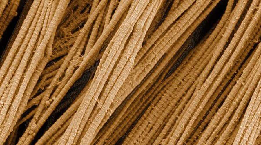 Các bó sợi collagen dưới kính hiển vi