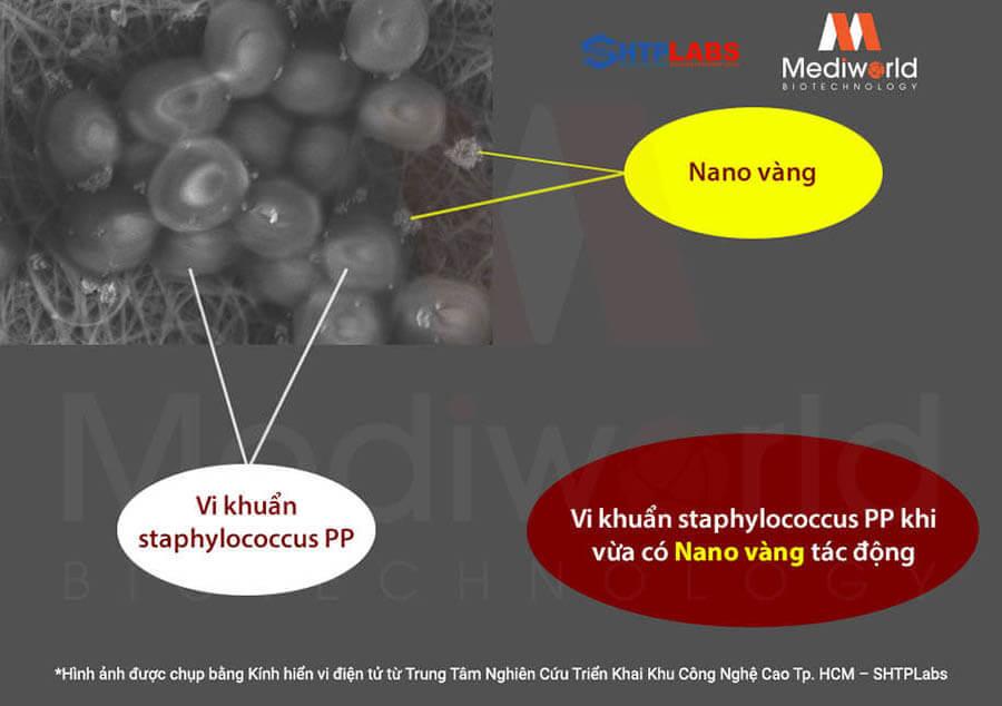 Nano vàng bắt đầu tấn công vi khuẩn