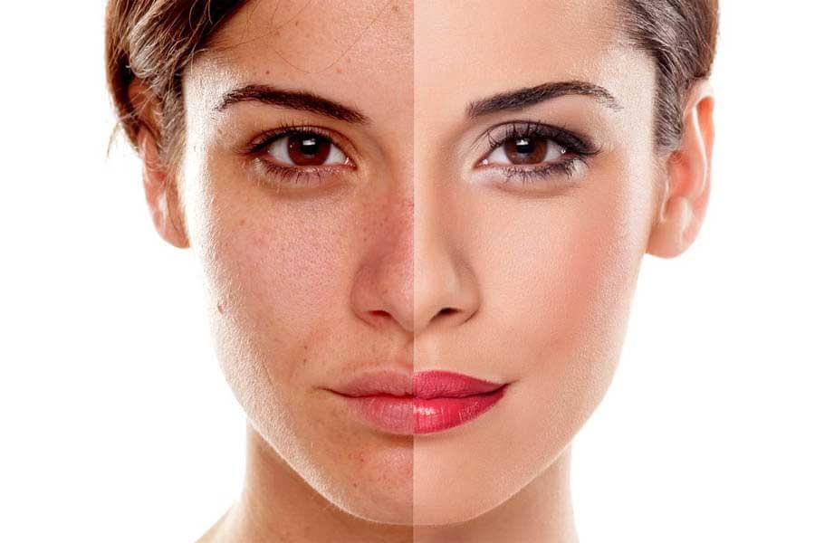 Retinol có thể giúp xử lý các vấn đề trên da