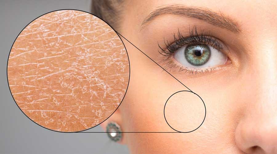 Làn da khô thường bị tróc vảy hay nứt nẻ